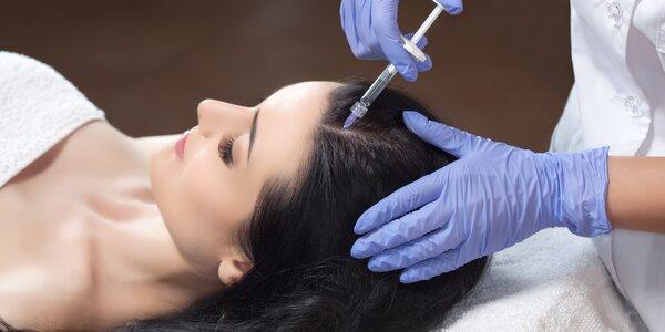 Vlasová mezoterapie proti řídnutí vlasů