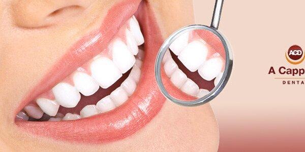Profesionální dentální hygiena (45-60 min) na soukromé klinice