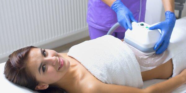 Hubnutí kryolipolýzou lékařským přístrojem BTL