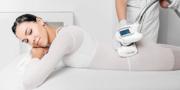 Vytvarujte tělo a zbavte se vrásek díky Cellu M6