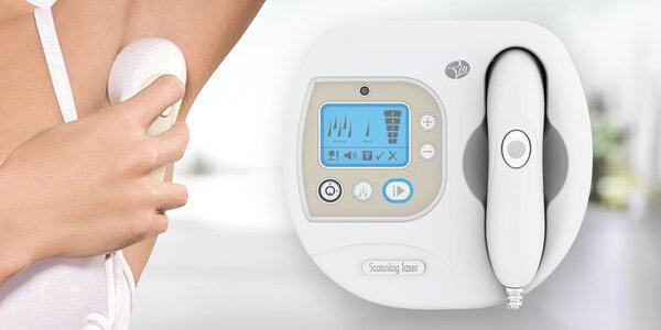Zbavte se chloupků: přístroj na laserovou epilaci