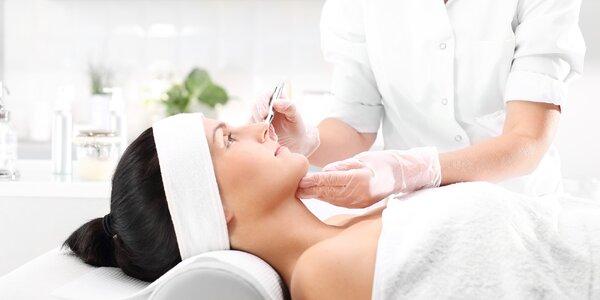 Mikrojehličkování obličeje, krku a dekoltu