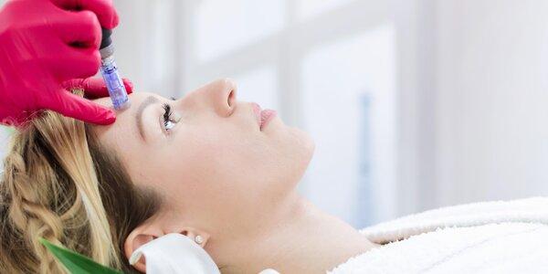 Ošetření pleti obličeje a krku mikrojehličkováním