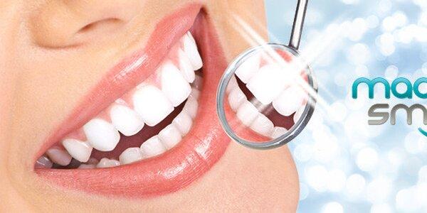 Profi dentální hygiena na klinice Magic Smile