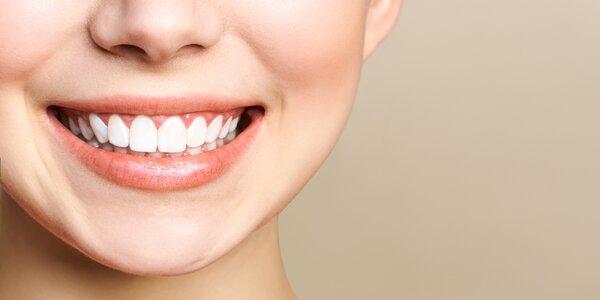 Čisté jako sníh: bělení zubů s dentální hygienou