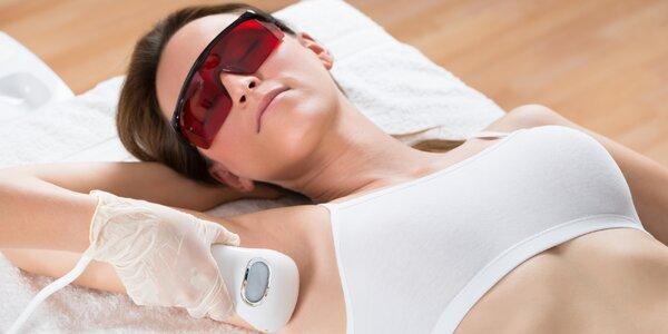 Epilace lékařským laserem - trvalé odstranění chloupků