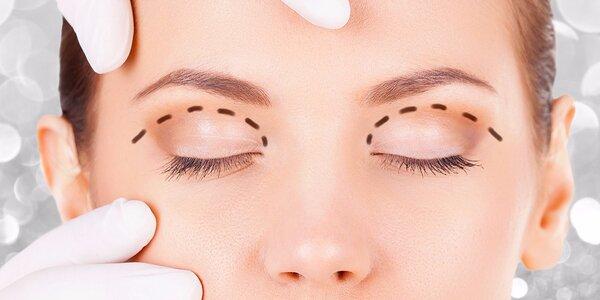 Redukce nadbytečné kůže na horních či dolních víčkách