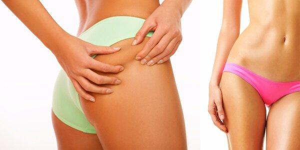 Hubnutí s ultrazvukovou liposukcí a lymfodrenáží