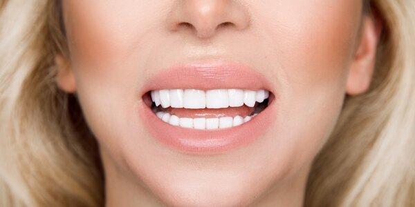 Mějte zářivý úsměv: bělení metodou Star White