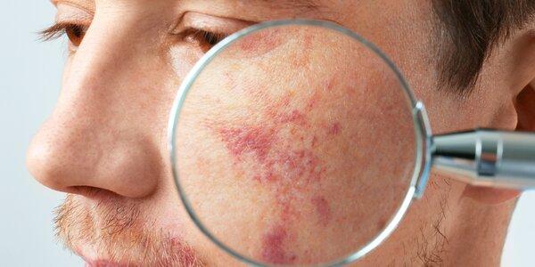 Odstranění žilek, skvrn, akné či jizev pomocí IPL
