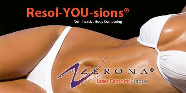 Neinvazivní účinné hubnutí s laserem ZERONA® U.S.A.