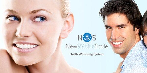 Bělení zubů se skvělými výsledky
