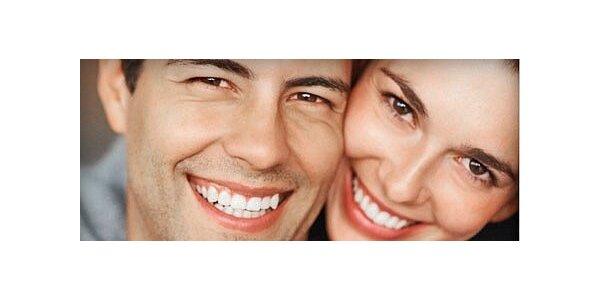 Profesionální bělení zubů