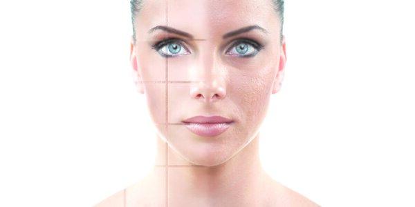 Kosmetické ošetření s komplexem AHA kyselin - chemický peeling LABORATORIES…