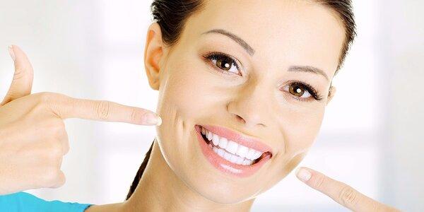 Profesionální ordinační bělení zubů