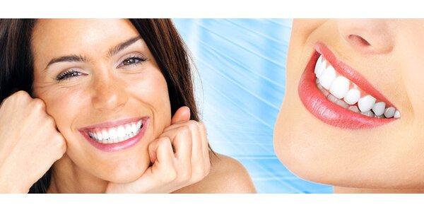 Ordinační bělení zubů na klinice Santé (90 min)