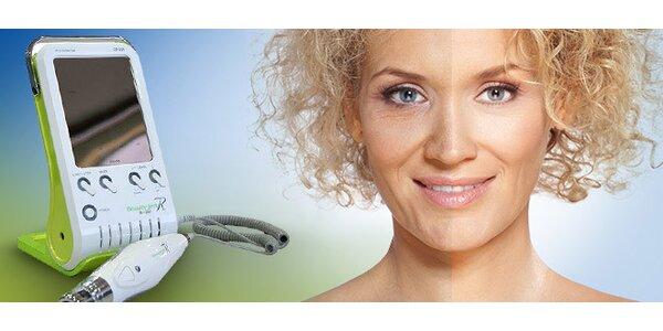 Kosmetický přístroj Beauty JETT. Méně vrásek i celulitidy!
