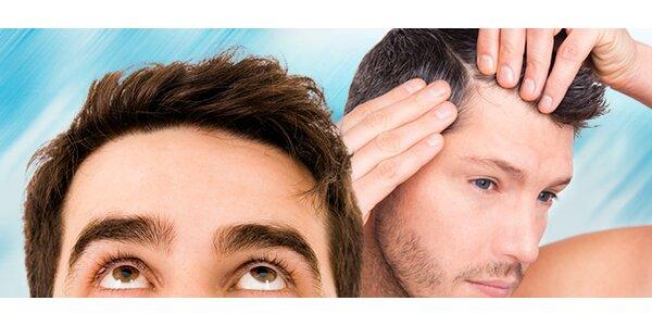 Transplantace vlasů