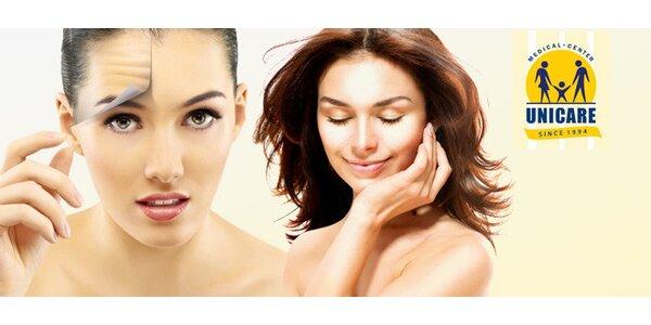 Botox proti vráskám i pocení na klinice Unicare