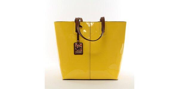 Dámská zářivě žlutá kabelka s vyjímatelnou kapsou Beverly Hills Polo Club
