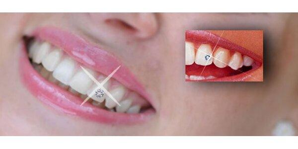 299 Kč za nalepení originálního kamínku Swarovski na zuby. SLEVA 40%!