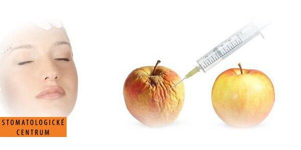 Plasmolifting s přidáním kyseliny hyaluronové - regenerace a obnova pokožky