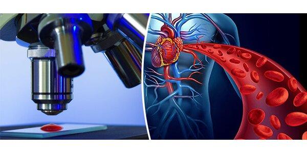 Darkfield mikroskopie živé kapky krve