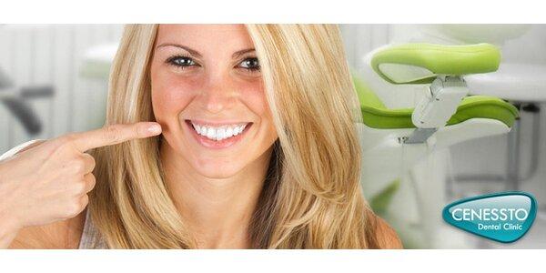 Ordinanční bělení zubů nebo bělení + dentální hygiena