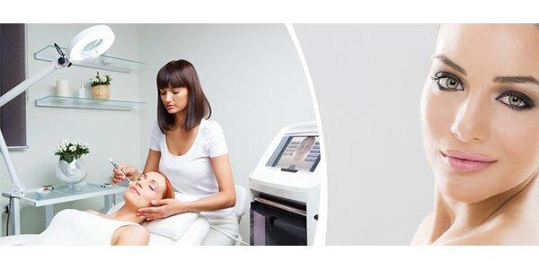 Kosmetické ošetření pleti mikrodermabrazí