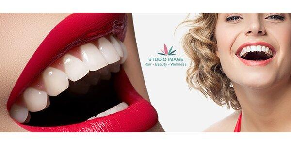 Bezperoxidové bělení metodou Oxygen Teeth Whitening