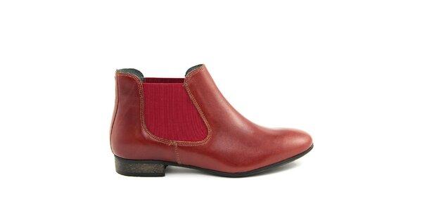 Dámské vínové kotníčkové boty Giorgio Picino