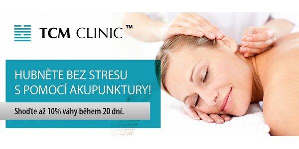 Hubněte bez stresu s pomocí akupunktury
