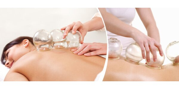 Baňkování - masáž zad a šíje v délce 60 minut
