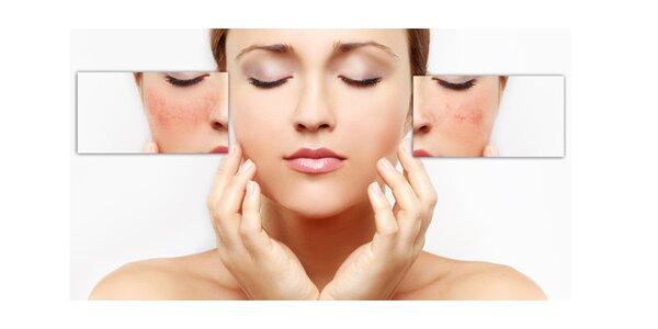 Pigmentové ošetření - relaxační kúra včetně masáže hlavy a vlasů pro krásnou…