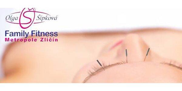 Kosmetická akupunktura ve Fitness Olgy Šípkové - omlazení a odstranění vrásek…