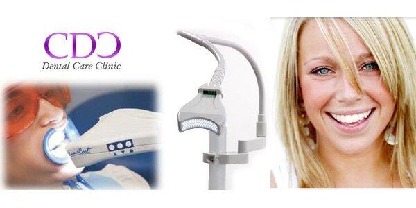 2599 Kč za profesionální bělení zubů metodou Quick White v hodnotě 5800 Kč!