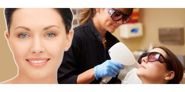 Odstranění Permanentního make-upu a tetování
