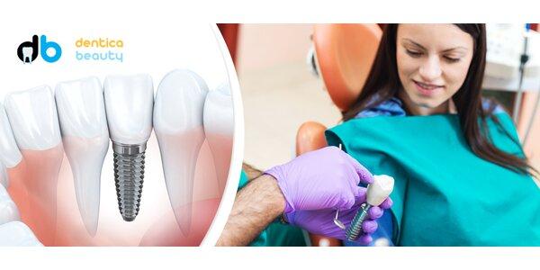 Vysoce kvalitní zubní implantát - metalokeramická korunka