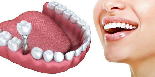 Špičkový zubní implantát + dentální hygiena
