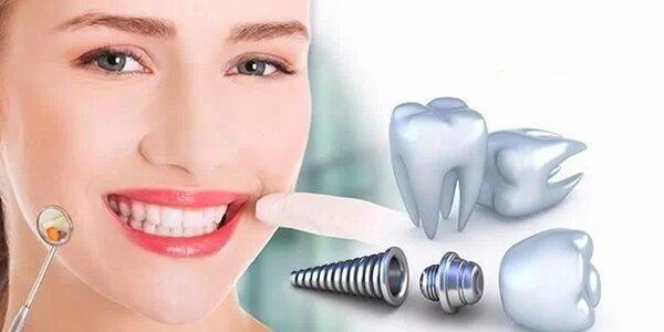 Zubní implantát Dentis - extra odolný