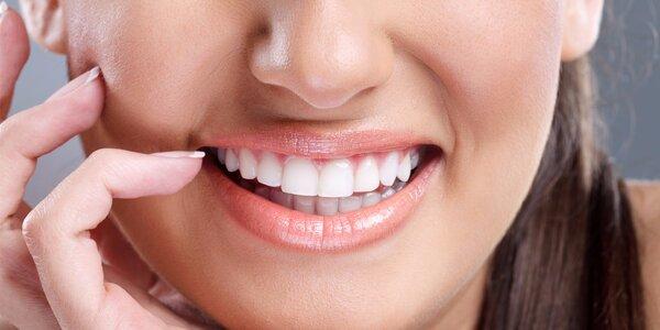 Dentální hygiena s možností ordinační bělení zubů