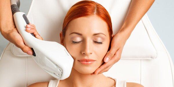 Lifting obličeje vč. odstranění žilek a skvrn