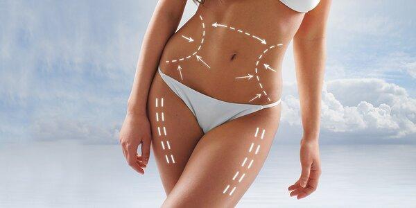 Bezbolestná neinvazivní liposukce břicha pro ženy