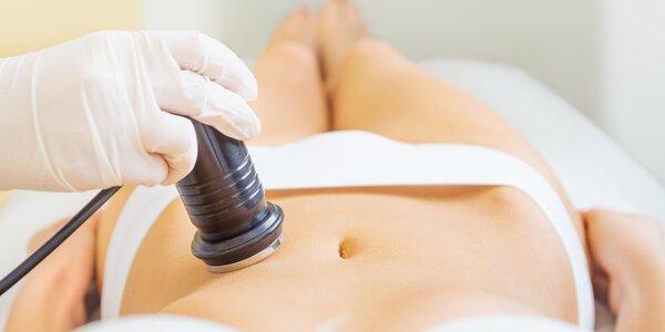 Laserová lipolýza – ošetření až 10 partií