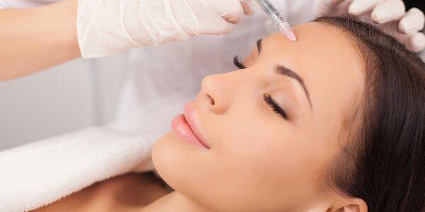 Vyhlazení vrásek pomocí botoxu nebo mezonití