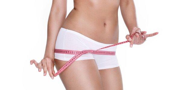 Odstranění tuku: neinvazivní ošetření Syneticou