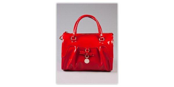Dámská ohnivě červená lakovaná kabelka s odnímatelným popruhem Ferré Milano