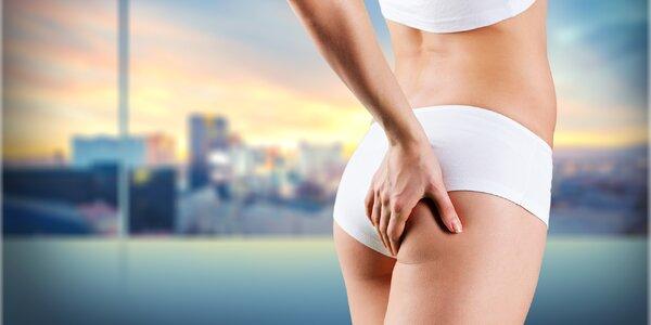 Zhubněte bezbolestně a bez diet s kryolipolýzou