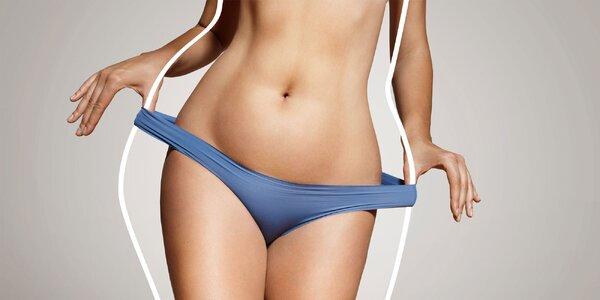Záloha na chirurgickou liposukci dvou partií