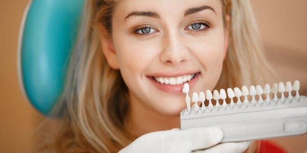 Zářivý úsměv: Ordinační bělení zubů